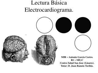 Lectura Básica Electrocardiograma.