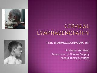 CERVICAL LYMPHADENOPATHY