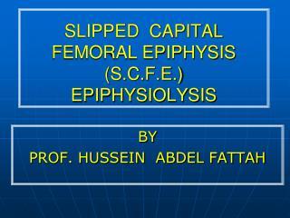 SLIPPED  CAPITAL  FEMORAL EPIPHYSIS (S.C.F.E.) EPIPHYSIOLYSIS