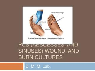 Pus Abscesses, and sinuses wound, and Burn Cultures