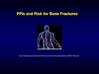 PPIs and Risk for Bone Fractures