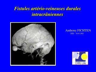 Fistules artério-veineuses durales intracrâniennes