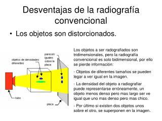 Desventajas de la radiografía convencional