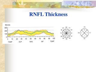 RNFL Thickness