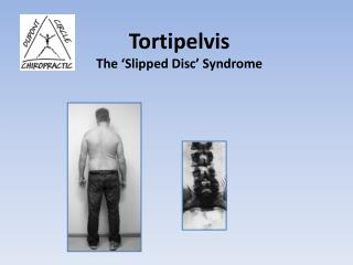 Tortipelvis The 'Slipped Disc' Syndrome