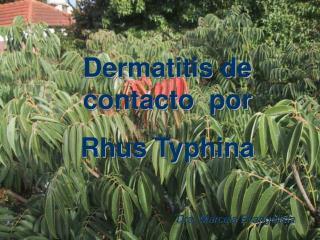 Dermatitis de contacto  por  Rhus Typhina