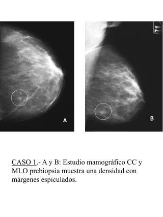 CASO 4 .- D y E: Magnificaciones de la lesi�n detectada en el estudio radiol�gico de control.