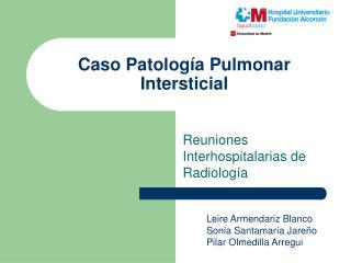Caso Patología Pulmonar Intersticial