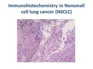 PSS 8 IHC in NSCLC webcast 3