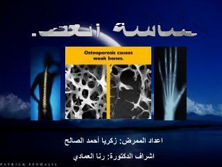 اعداد الممرض: زكريا أحمد الصالح اشراف الدكتورة: رنا العمادي
