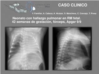 Neonato con hallazgo pulmonar en RM fetal.  42 semanas de gestación, fórceps,  Apgar  9/9