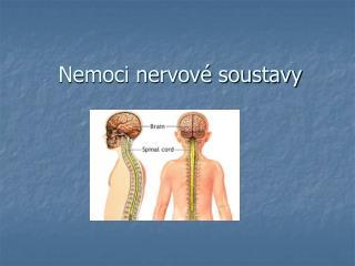 Nemoci nervové soustavy