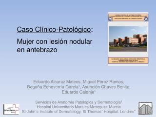Eduardo Alcaraz Mateos, Miguel Pérez Ramos,  Begoña Echeverría García 1 , Asunción Chaves Benito,