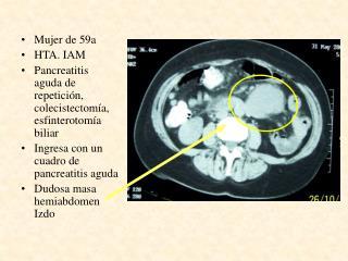 Mujer de 59a  HTA. IAM  Pancreatitis aguda de repetición, colecistectomía, esfinterotomía biliar