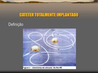 CATETER TOTALMENTE IMPLANTADO