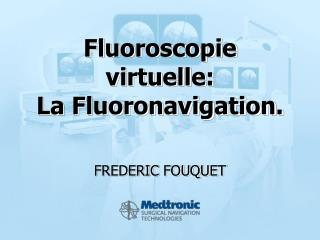 Fluoroscopie virtuelle: La Fluoronavigation.
