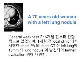 A 70 years old woman with a left lung nodule