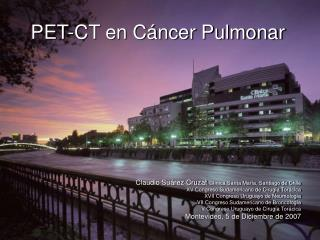 PET-CT en Cáncer Pulmonar
