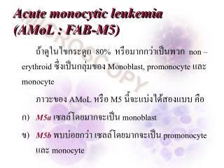 Acute monocytic leukemia  (AMoL : FAB-M5)