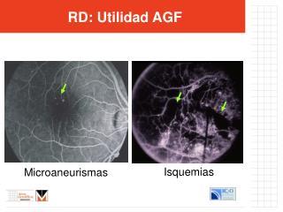 RD : Utilidad AGF
