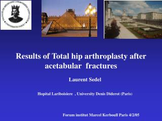 Results of Total hip arthroplasty after  acetabular  fractures