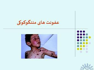 عفونت های مننگوکوکی