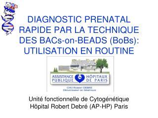 DIAGNOSTIC PRENATAL RAPIDE PAR LA TECHNIQUE DES BACs-on-BEADS (BoBs): UTILISATION EN ROUTINE