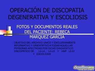 OPERACIÓN DE DISCOPATIA DEGENERATIVA Y ESCOLIOSIS