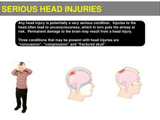 SERIOUS HEAD INJURIES