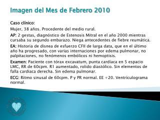 Imagen del Mes de Febrero 2010 Caso clínico: Mujer, 38 años. Procedente del medio rural.