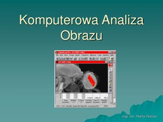 Komputerowa Analiza Obrazu