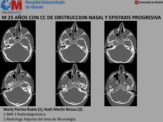 M 25 AÑOS CON CC DE OBSTRUCCION NASAL Y EPISTAXIS PROGRESIVA