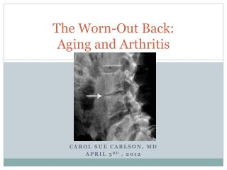The Worn-Out Back:  Aging and Arthritis