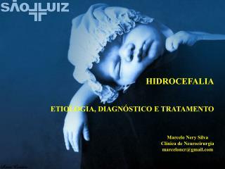 HIDROCEFALIA ETIOLOGIA, DIAGNÓSTICO E TRATAMENTO