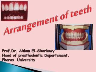 Arrangement of teeth