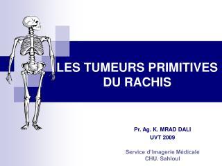 LES TUMEURS PRIMITIVES DU RACHIS