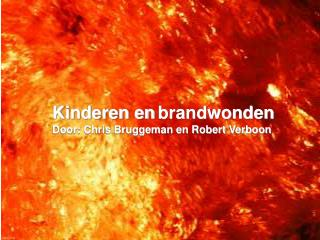 Kinderen en brandwonden Door: Chris Bruggeman en Robert Verboon