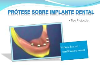 Prótese sobre Implante Dental