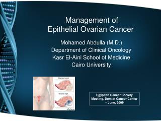 Management of  Epithelial Ovarian Cancer