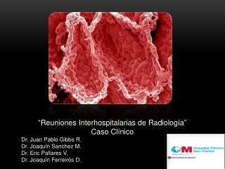 """"""" Reuniones Interhospitalarias de Radiología """" Caso Clínico  Dr. Juan Pablo Gibbs R."""