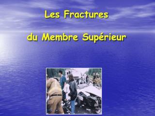 Les Fractures du Membre Sup�rieur