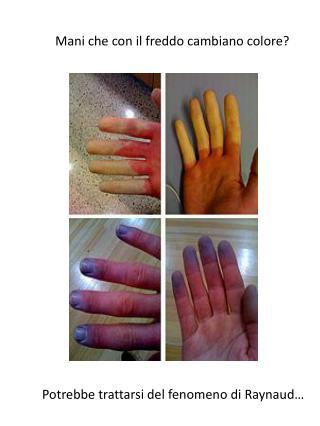 Mani che con il freddo cambiano colore?