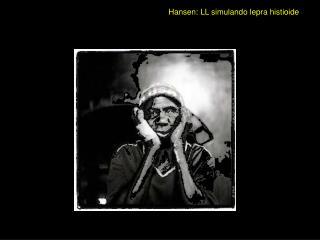 Hansen: LL simulando lepra histioide
