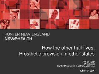 How the other half lives: Prosthetic provision in other states