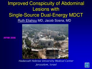 Improved Conspicuity of Abdominal Lesions with  Single-Source Dual-Energy MDCT