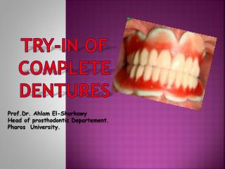 TRY-IN of COMPLETE DENTURES