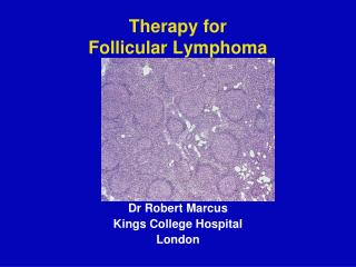 Therapy for Follicular Lymphoma