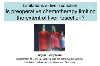 Limitations in liver resection: