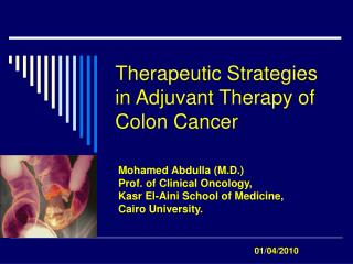 Therapeutic Strategies in Adjuvant Therapy of Colon Cancer