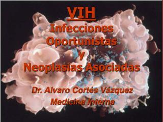VIH Infecciones Oportunistas y Neoplasias Asociadas
